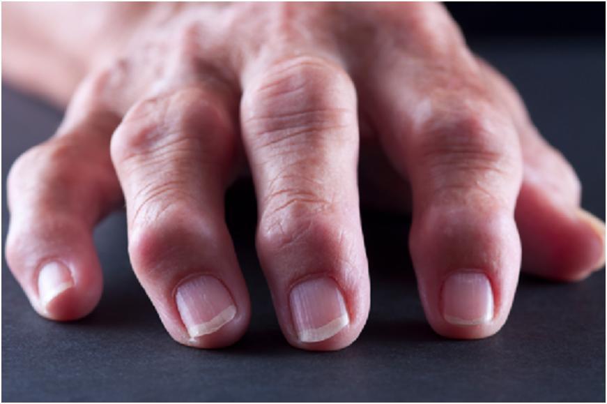 воспаления сустава на пальцах руки
