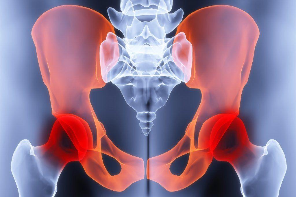Остеохондроз тазобедренного сустава что это такое болит в правом локтевом суставе