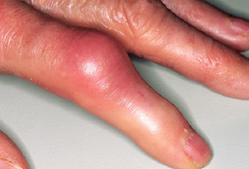 Артроз на пальцах рук лечение