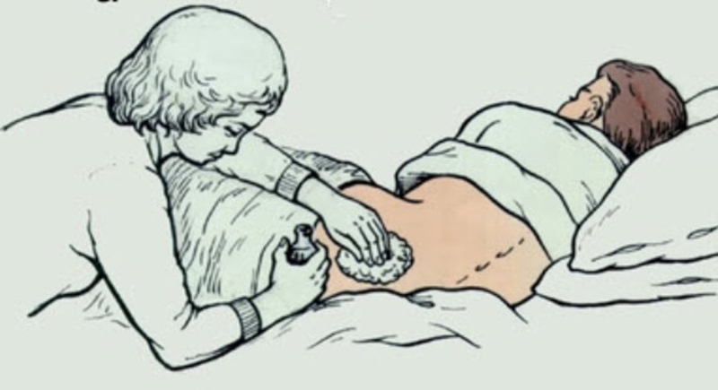 Как в домашних условиях бороться с пролежнями у лежачего больного